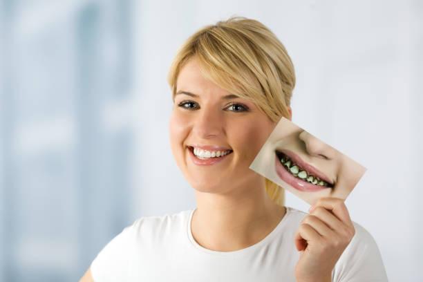 γυναίκα, χαμόγελο, δόντια τώρα, πρώτα